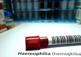 Issues of Hemophilia in the Medical Field