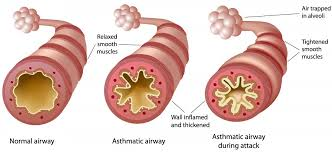 Phd thesis on asthma