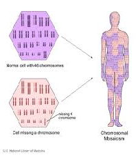 Down Syndrome a Chromosomal Disorder