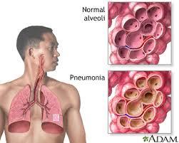 Pneumonia Pathophysiology Disease Process
