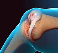 Wound Management in Total Knee Replacement