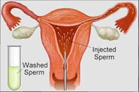 Intracervical artificial insemination